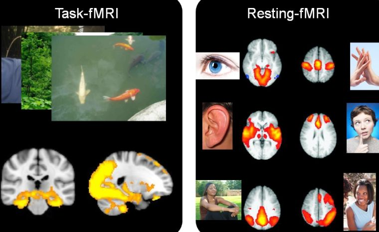 Slide combining photos of memory tests and brain scans