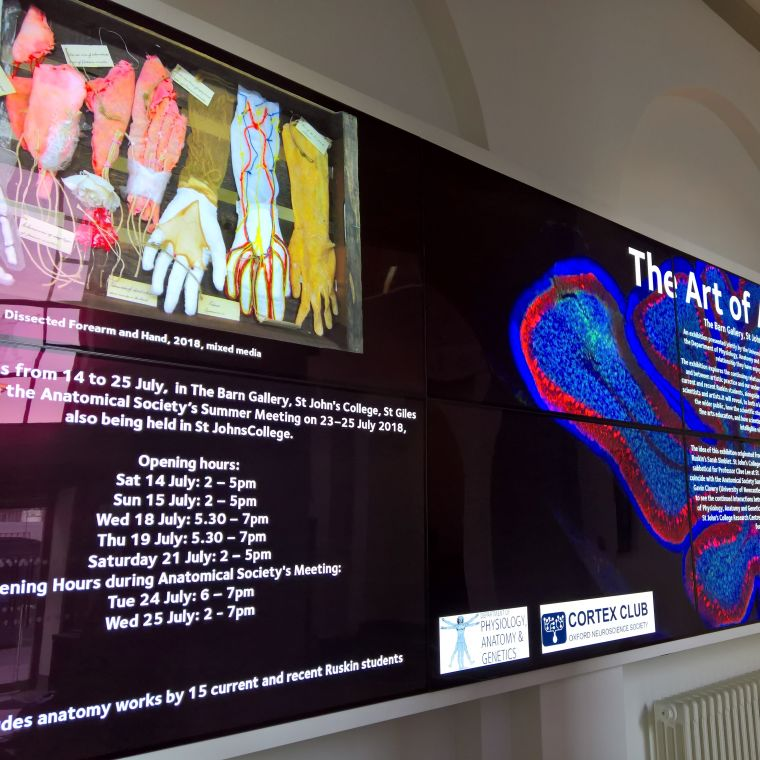 The Sherrington reception video wall is 10 screens showing interactive media, event posters, departmental films, and more.
