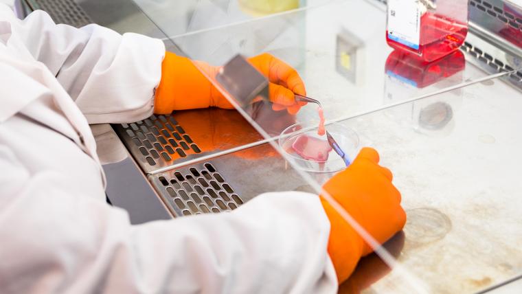 Nanchahal Group | Treating fibrosis and improving tissue regeneration