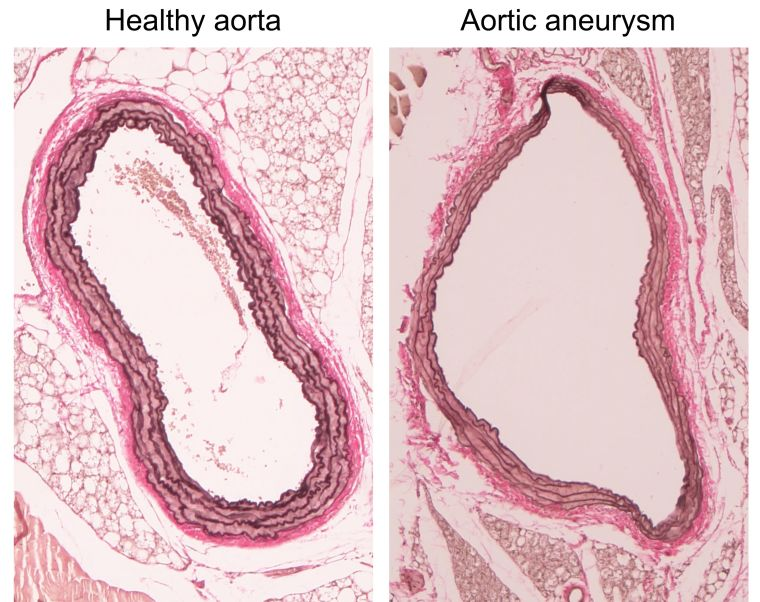 A healthy aorta when compared with an aortic aneursm is significantly narrower and less swollen in appearance.