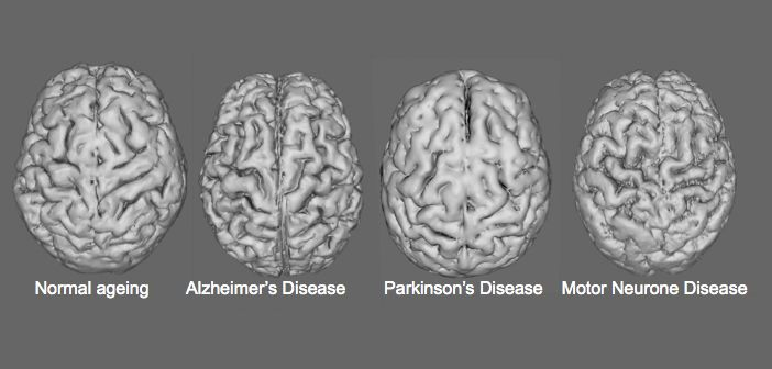 The various ways in which neurodegenerative diseases can affect the brain
