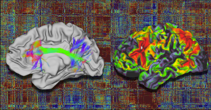Clustering of brain networks using structural and functional connectivity