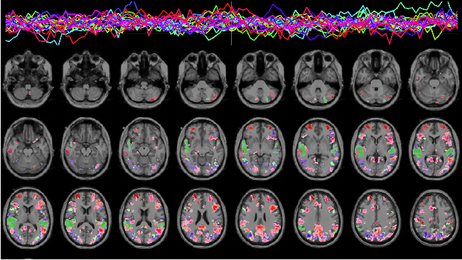 Functional MRI Modelling