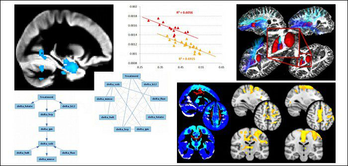 Alzheimer's, Huntington's, ALS: cutting-edge analysis methodology (e.g., multi-modal approach, probabilistic tractography, Bayesian causal modelling) contributes to a better understanding of the pathophysiological process and effect of treatment.