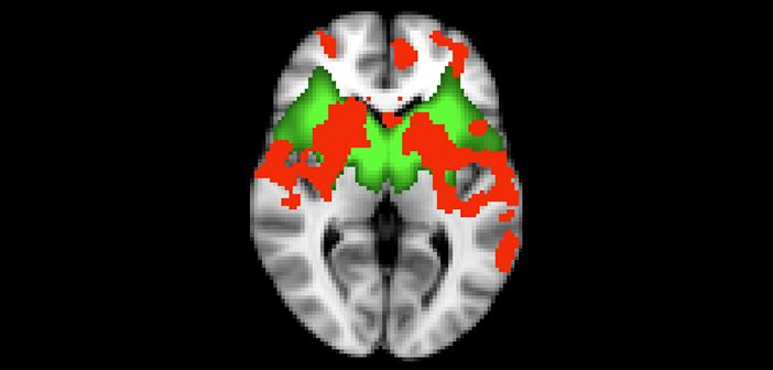 Connectivity in the basal ganglia