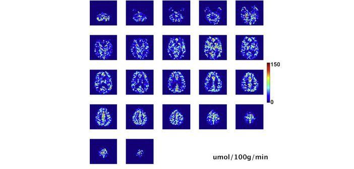 Cerebral Metabolic Rate of Oxygen Consumption CMRO2 data taken from Bulte et al., 2012