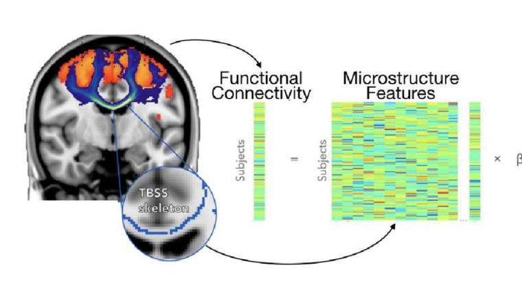 Research confirms link between brain2019s white matter pathways and strength of communication between brain regions
