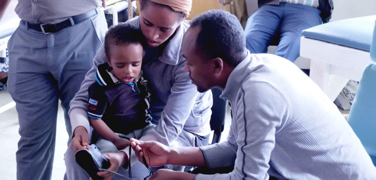 Clubfoot training begins in ethiopia with ndorms team