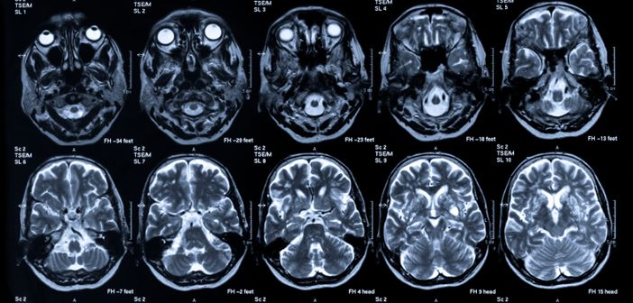 Stroke prevention and atrial fibrillation