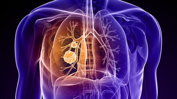 Lung cancer can be detected early by looking at common early symptoms, like cough.