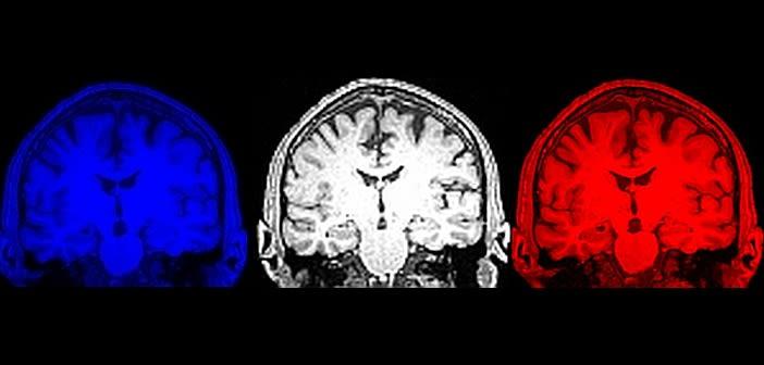 8th july oxdare aruk dementia day