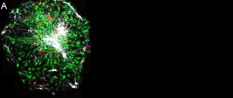 Stem cells made nerve cells (white) and support cells (green and red)