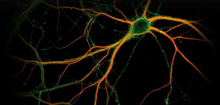 Diagnosing autoimmune diseases of the nervous system