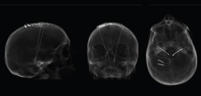 Using deep brain stimulation to treat parkinson2019s disease