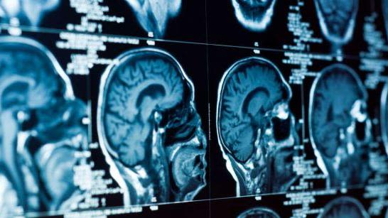 Lifestyle factors linked to brain health of young adults