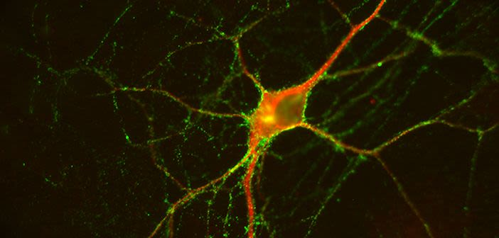 Nmdar antibody encephalitis a new clinical way to identify patients
