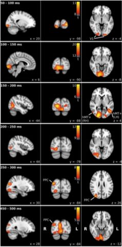 Human brain signals in real time