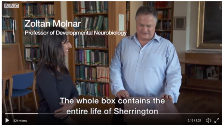 Professor zoltan molnar features in bbc programme how the nhs changed our world