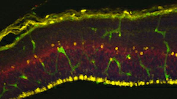 Tbr2+ subventricular intermediate progenitors divide close to the blood vessels