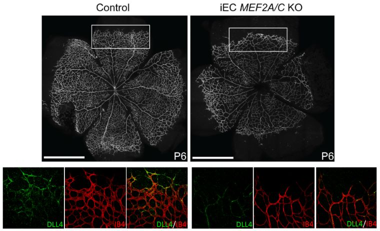 Reduction of mef2 proteins causes decreased angiogenesis and reduced dll4 expression.jpg