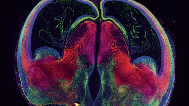 Zoltan molnar evaluates latest research into human cerebral cortex development