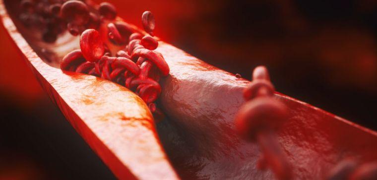 Closeup of a atherosclerosis