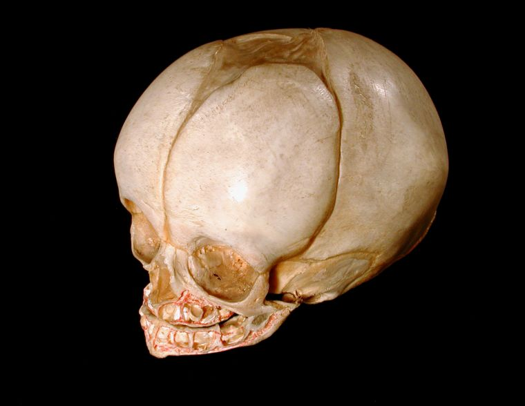 Shot facing downwards at a human skull against a dark background