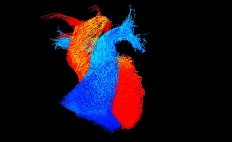 3D rendition of two heart muscles