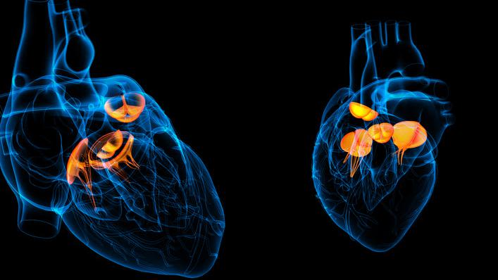 Genetic study confirms link between lipoprotein and aortic valve disease