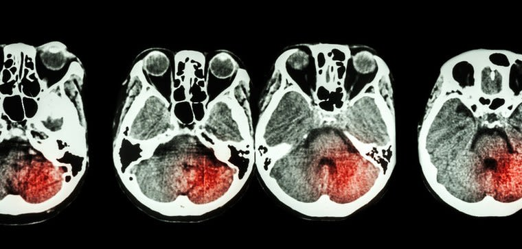 Image of slice through human brain showing location of a stroke.