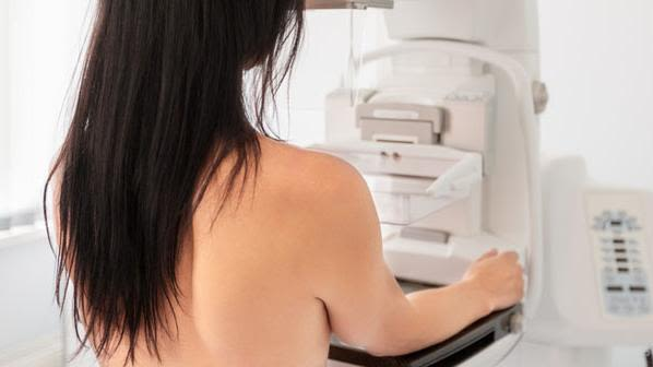 Breast cancer recurrence risk persists for 20 years
