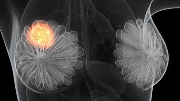 Increasing dose intensity of chemotherapy reduces the risk of breast cancer recurrence and death