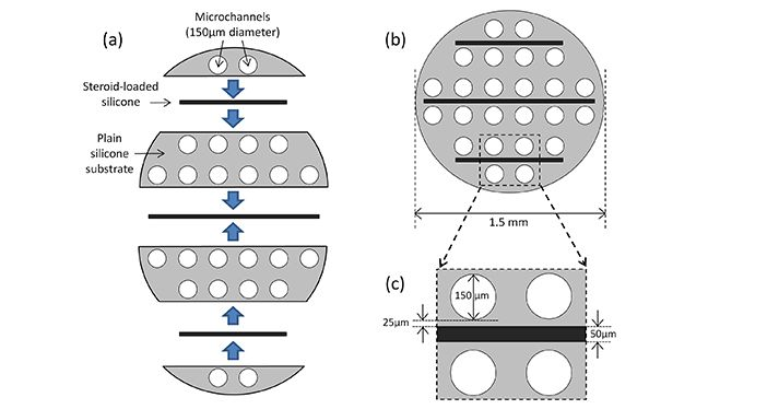 Construction of steroid eluting microchannel implants (end view).  (a) The seven layers that make up the channel array. (b) Assembled channel array. (c) Close-up of part of panel (b) showing details of channel and drug layer dimensions.