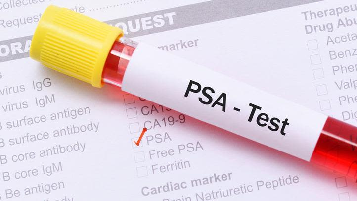 Vasectomy does not increase risk of prostate cancer