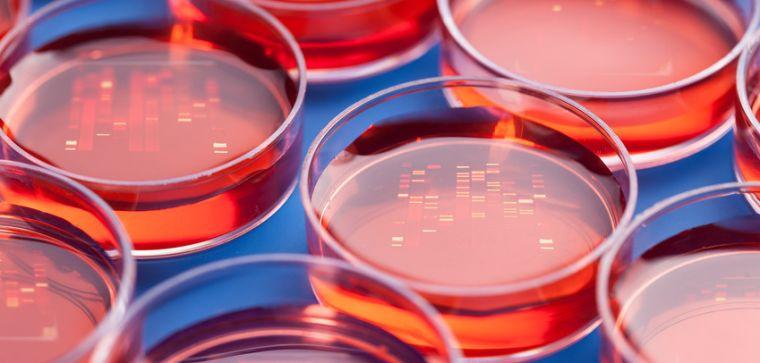 Procardis sibling pair studies of genetic determinants of mi