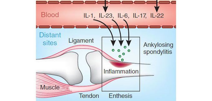 The role of inflammatory cytokines in spondyloarthropathy [Reprinted by permission from Macmillian Publishers Ltd: Nature Med  17, 1055–1056 (2011)]