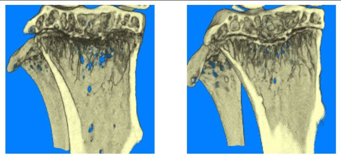 New hope for patients with cancer induced bone diseases