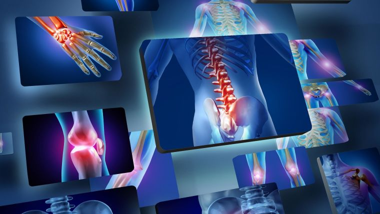 Kennedy researchers awarded mrc funding for arthritis research