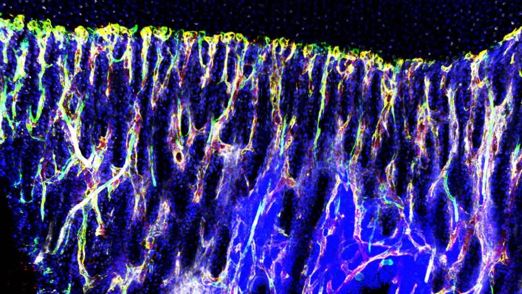 Study links blood vessels to therapy resistance in cancer metastasis to bone