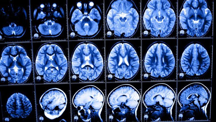 Oxford Biomedical Imaging Network