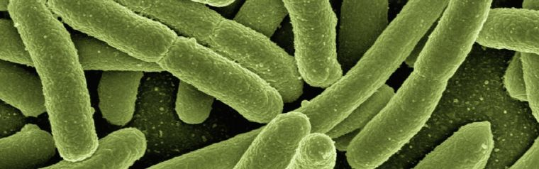 Electrochemical bacteria sensor