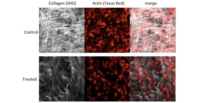 Collagen formation visualised by second harmonic generation (SHG) is used to assess the impact of epigenetic modifying compounds on collagen output in articular cartilage discs generated from human mesenchymal stem cells. Imaging carried out in collaboration with Dr Clarence Yapp.