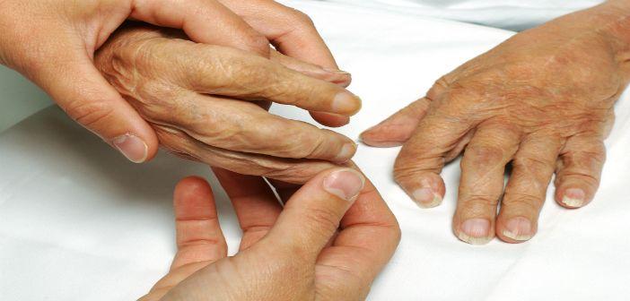 Hand exercises improve function in rheumatoid arthritis patients