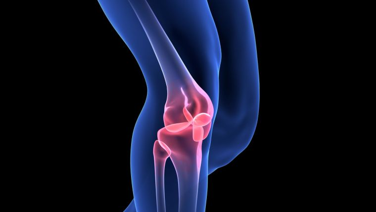 Knee with osteoarthritis