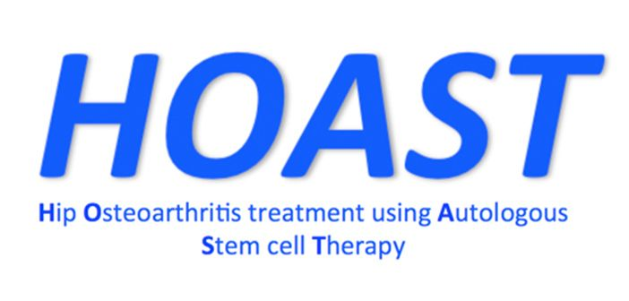 Hip Osteoarthritis Treatment using Autologous Stem Cell Therapy
