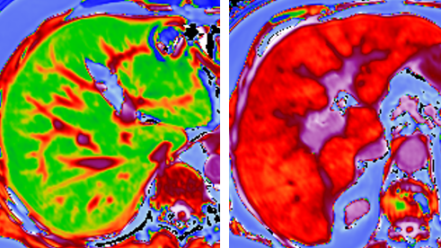 Ground breaking 20ac34 million project to develop better test for liver disease
