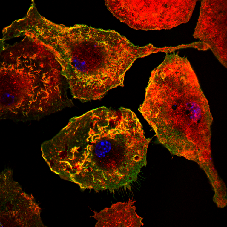 This translational science laboratory aims to understand the functionally important heterogeneity in human cardiovascular disease to allow stratification of pathology and enable targeted therapies.