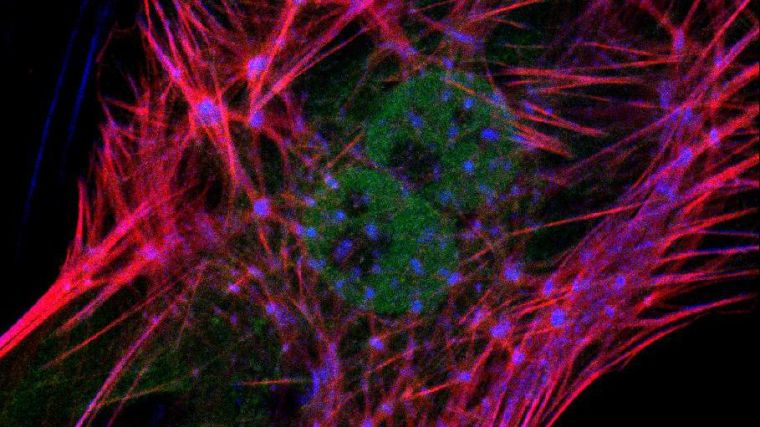 Picture of the actin cytoskeleton stained in red.