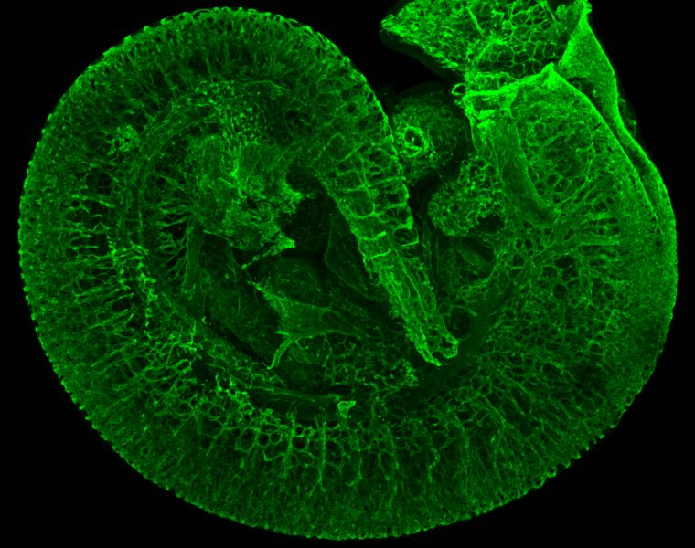 This image shows a three-dimensional reconstruction of the vasculature system of a mouse embryo at 10 days of gestation. It can be appreciated how the vessel network is already branched at a very high level of complexity, to allow the first blood cells to reach every part of the developing embryo.#