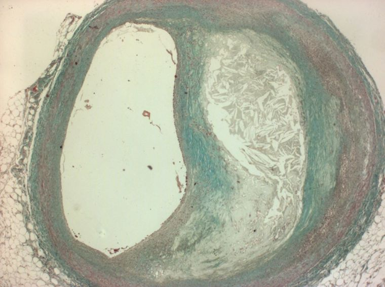 Figure showing an atherosclerotic plaque from a human coronary artery. The diameter of the lumen (left of the image) has been significantly reduced by the plaque. Within the plaque (right hand side of image) the presence of a lipid rich necrotic core are visible. A collagen rich (green staining) fibrous cap separates the plaque from the lumen of the vessel.